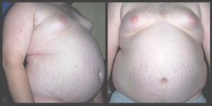 800px-Obesity6