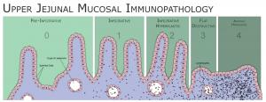 Dysbiosis_-_Coeliac_Disease